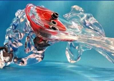 acrylic joint - Sacroiliac Joint